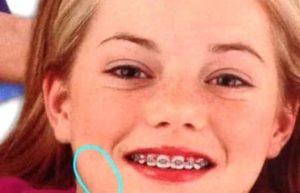 Emma Stone Braces